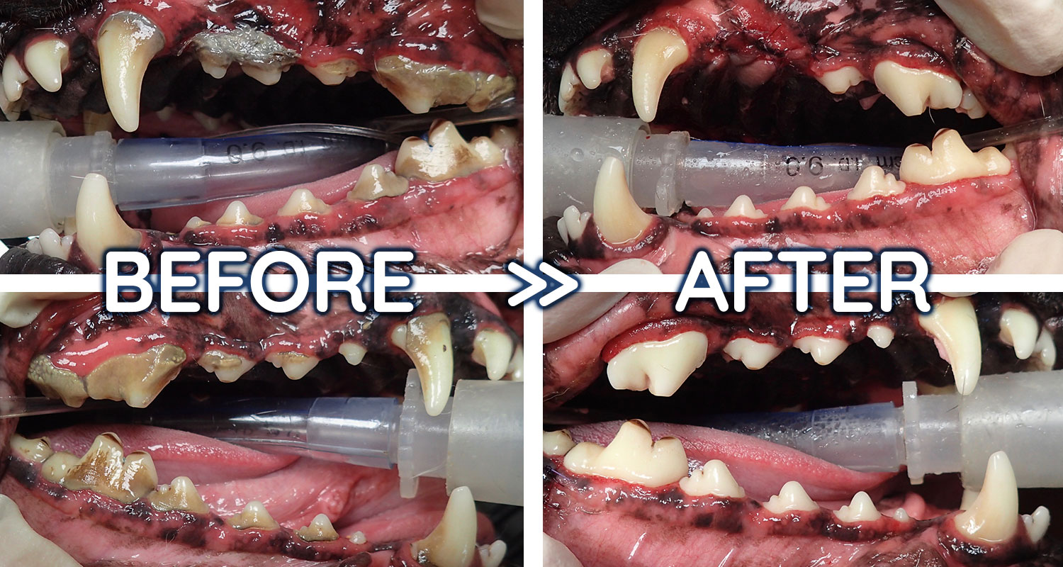 Before-After-Dental-Collage